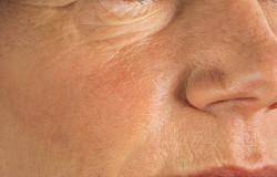 Wypełniacze na bazie kwasu hialuronowego - przed zabiegiem