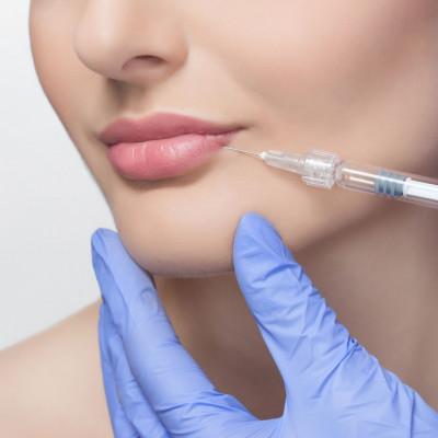 Kwas hialuronowy – powiększanie i modelowanie ust