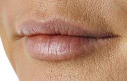 Powiększenie i modelowanie ust - po zabiegu