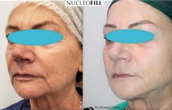 Nucleofill - lifting na poziomie komórkowym