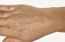 Restylane Hydrobalans - po zabiegu