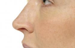 Restylane Hydrobalans - przed zabiegiem